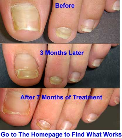 94 best Nail Fungus images on Pinterest