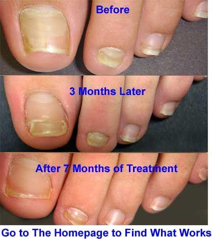 Best 20+ Best fungal nail treatment ideas on Pinterest | Best ...