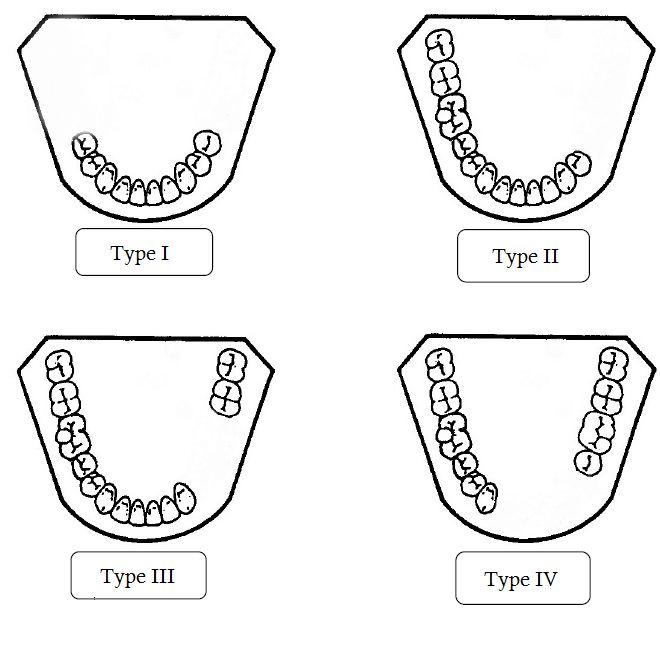 Más de 25 ideas increíbles sobre Protesis dentales en