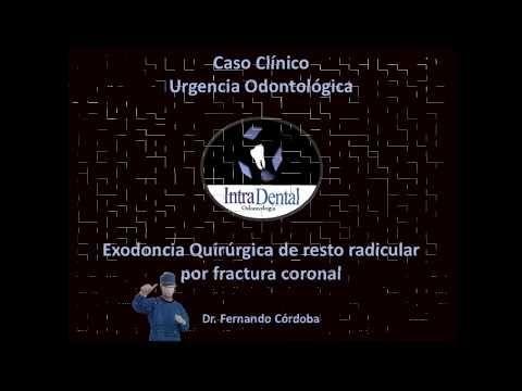 intradentalodontologia: exodoncia quirurgica de diente 16