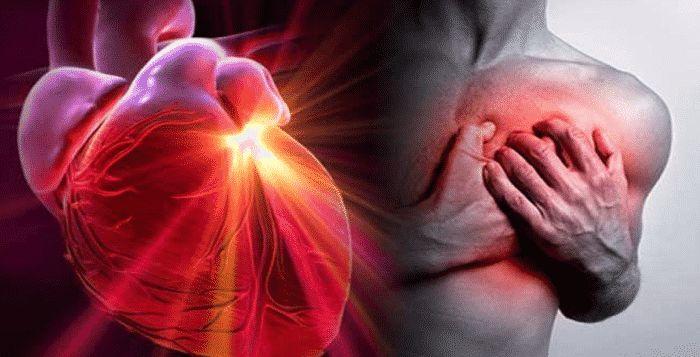 Na miesiąc przed atakiem serca, twoje ciało będzie wysyłało Ci znaki, że coś jest nie tak