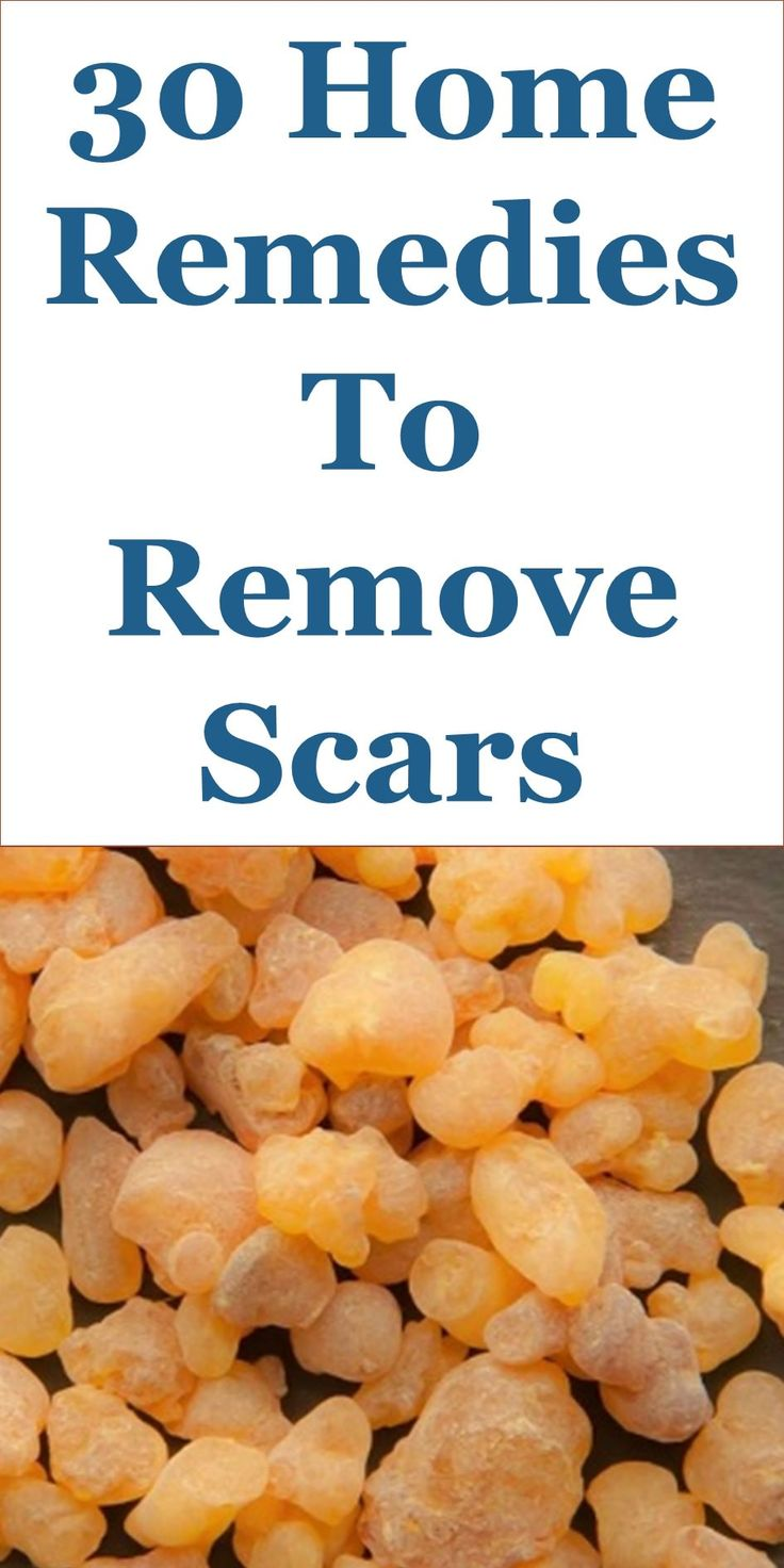 Scars occur as a result of the formation of fibrous tissues that repair and protect a skin that has been injured. You can get a scar on your skin through accidents, burns, acne, scrapes, surgical cuts, piercings, insect bites and vaccinations. Scar tissues look the same with that of healthy skin. However, their fiber structure is very different. Scars widely vary in shape and size. They could affect your appearance and make you feel self-conscious. Scars tend to get less prominent with time…