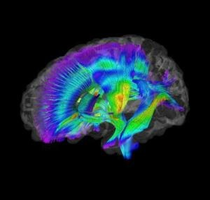 Brain Imaging Differences Evident at 6 Months in High-Risk Infants Who Later Develop Autism | Article from ScienceDaily | February 17, 2012