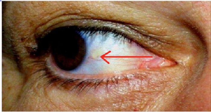 Você sabia que, segundo a medicina natural, os vasos sanguíneos em seus olhos podem dizer muito sobre nossa saúde?
