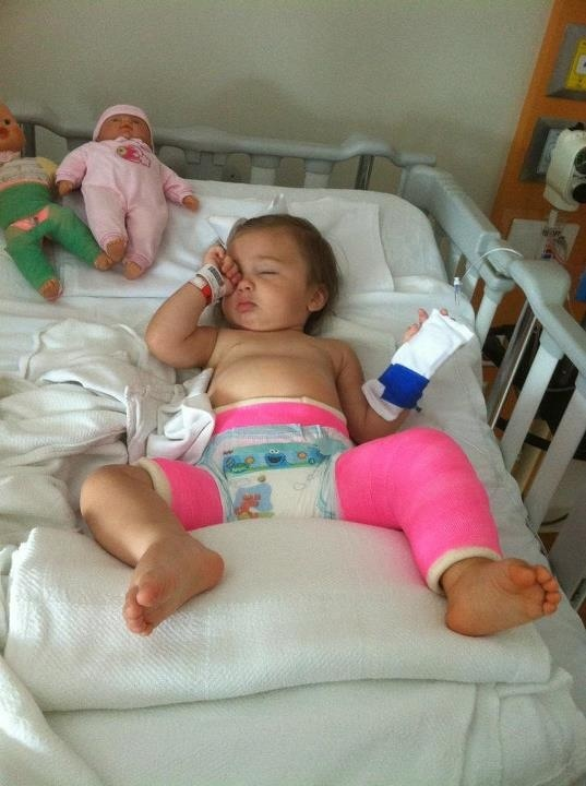 Spica Cast After Pipers Surgery