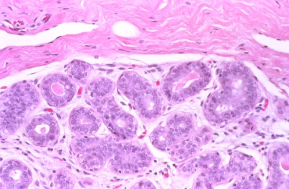 and fpathologyof mammary glands the breast