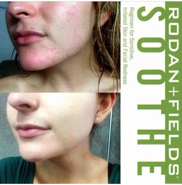 Sensitive Skin This Winter Take Care Of That With Soothe Designed To Addresses Sensitive Skin Neutr Rodan And Fields Soothe Rodan And Fields Irritated Skin