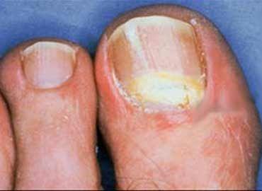 Onicomicoza: Preventie, cauze si tratament ciuperca.realitateasatelor.ro |