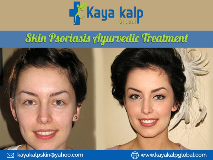 Psoriasis Revolution - skin psoriasis ayurvedic treatment skin psoriasis ayurvedic treatment in india. Contact to know more:goo.gl/Xi3zZq 1 Weird Trick That Forces Your Body to Heal Psoriasis In As Little As 7 Days - Guaranteed! psoriasisrevoluti... REAL PEOPLE. REAL RESULTS 160,000+ Psoriasis Free Customers