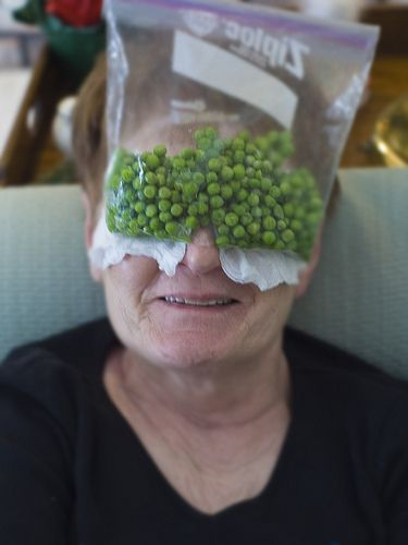 Char uses frozen peas to keep down the swelling on her eyelids after surgery. Her eyes got purple and yellow. eyelid surgery, cosmetic surgeon, blepharoplasty, eye-lift