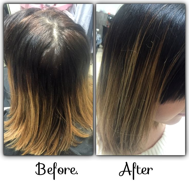 Before after colour correction after one appointment