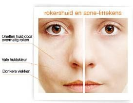 Hoe werkt glycolzuur? Ontdek nu het geheim achter een zuivere huid. http://www.beautyconsult.be/tags/glycolpeeling-voor-een-zuivere-en-glanzende-huid
