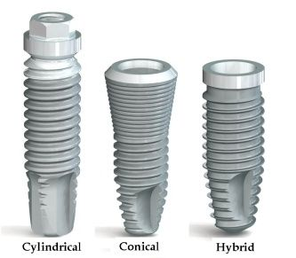 Dental implants design. (Courtesy of Conexão Sistemas e Prótese ... Brit Phillips DDS