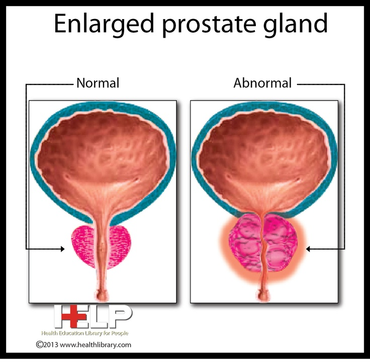 prostate medicine causing breast enlargement