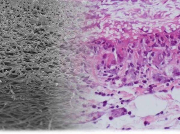 Nuevo material para la creación de vasos sanguíneos artificiales