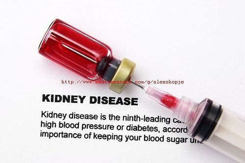 http://www.kidneypaincures.com/ For those who have a kidney mass and want to know what it might be, check out this page.