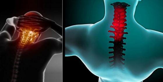 Soulager la douleur et la raideur du cou en 90 secondes seulement !