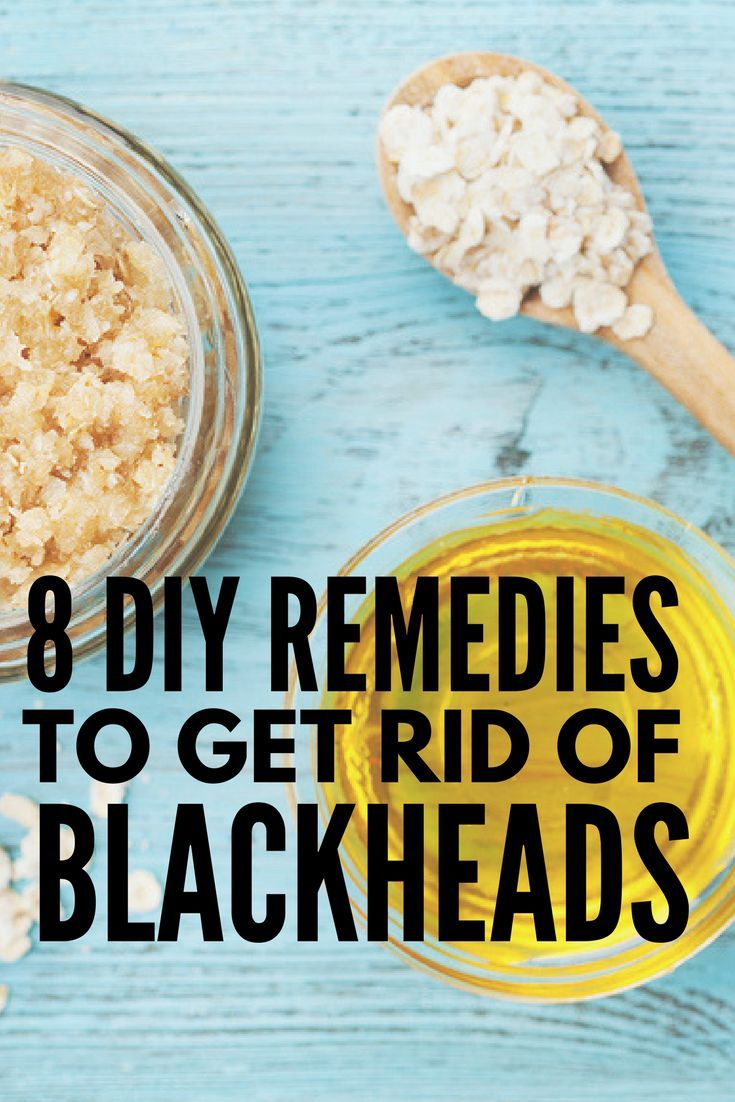 The Best Way To Remove Blackheads 8 At Home Blackhead Removal Ideas