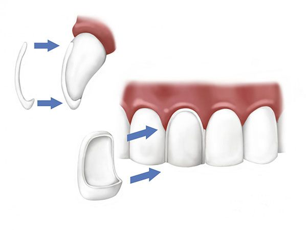 Image result for Questions And Answers About Dentists in Melbourne