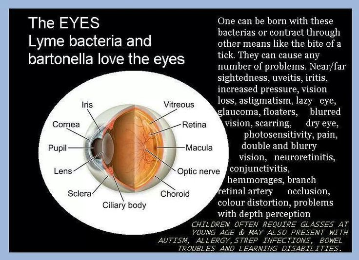 Lyme Bacteria and Bartonella Love the Eyes
