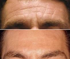BOTOX - One of the best ways to reverse the appearance of aging on the skin by relaxing wrinkles. Wonderful quick fix - everyone who has Botox loves the results. 305-531-9800