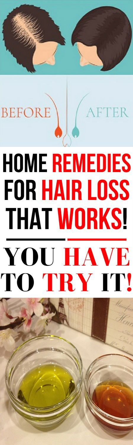 You Have to Try This Home Remedies for Hair Loss!
