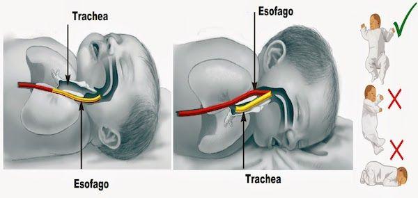 Per ridurre i rischi di soffocamento per rigurgito nel sonno, in quale posizione devono dormire i neonati