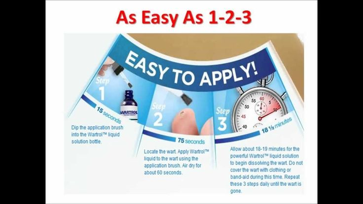 Discover a simple 1. 2. 3. wart remover…Over the counter wart remover that wor…Warts On Fingers