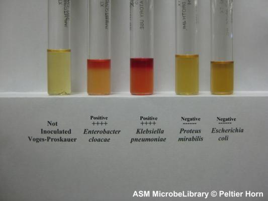 methyl red test microbiology