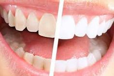 How To Whiten Teeth at home Instantly In One Week - http://emergencydentalcaretips.com/how-to-whiten-teeth-at-home-instantly-in-one-week/  Learn about how to whiten your teeth in 5 minutes, how to whiten teeth fast without baking soda, quick teeth whitening home remedies, how to whiten your teeth in one day, how to whiten teeth with banana, home remedies for whiter teeth overnight, how to make teeth whiter in 3 minutes, how to whiten teeth at home fast.