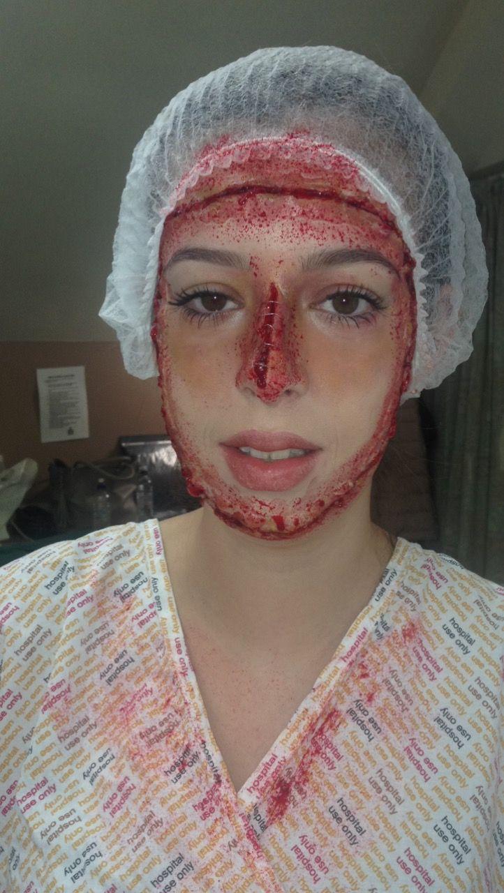 Plastic Surgery Gone Wrong Assessment!!💉🔪 #sfx #media #plasticsurgery #disaster #mua