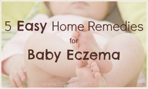 baby eczema home remedies. These ideas are so easy, they're worth a try before turning to chemicals!