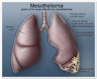 Legal options for those diagnosed with malignant mesothelioma. Learn more about finding the right mesothelioma lawyer for your case.