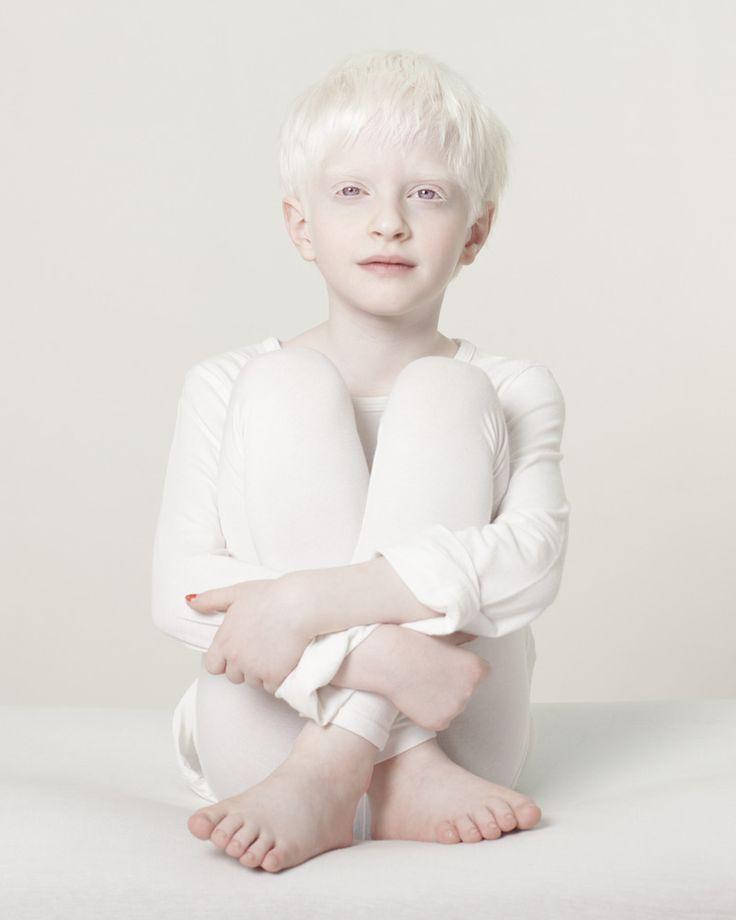 Albinismo (35)Bambino