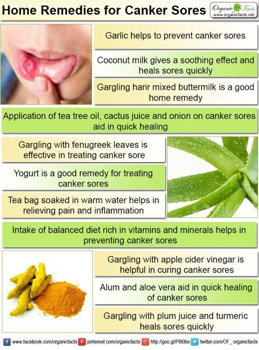 Home Remedies for Canker Sore Home remedies for canker sore include intake of garlic, harir, buttermilk, fenugreek, coconut milk, cactus juice, yogurt, tea bag, apple cider vinegar, alum, plum juice, aloe, baking powder, grape juice, papaya, turmeric powder, tea tree oil, onion in different forms as mentioned in the article.