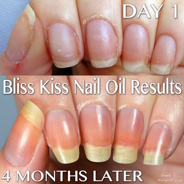 25 best * Get Longer, Stronger Fingernails images on Pinterest ...