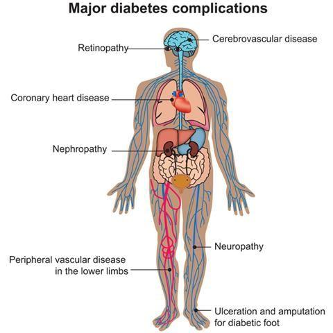 Diabetic Complications #diabetes www.diabetesinformationabout.com