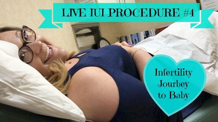 LIVE IUI Procedure #4, Journey to Baby