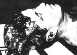 John F. Kennedy autopsy photo (#2)