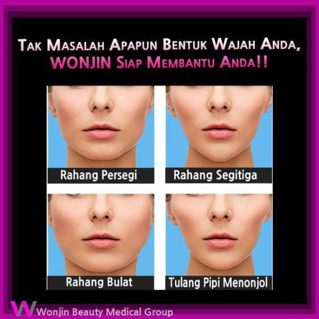 operasi kontur wajah korea