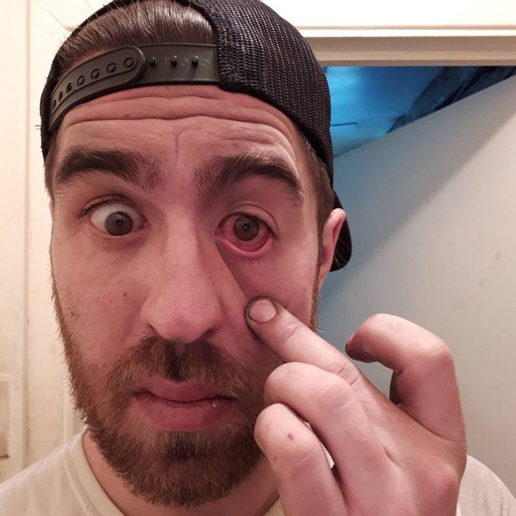 2 days ago I got a piece of steel in my eye. Had it removed yesterday morning. Gonna be a few more days till my eye is fully healed. Wasn't fun and wouldn't recommend it. Stay safe and wear your PPE.  I always wear eye protection at work. This actually happened when I was home and taking off my work clothes.  #welder #weld #welding #fabricator #fabrication #fabshop #eyeprotection #sliver #steel #hospitaltrip #accidents happen #eyedrops #sunglasses #ppe #photosensitive #lookingstoned