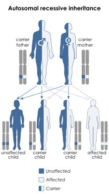 Spinal muscular atrophy - Wikipedia, the free encyclopedia