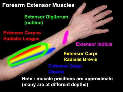 Forearm Extensor Muscle Overuse and  RSI