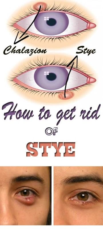 Painful and scary looking,stye looks like a red pimple-like very small lump on the eyelid or on its edge and it's not that hard to get rid of overnight. They appear if the eyelash follicle of the eyelid is infected or its oil gland and can be often painful, however the swelling tend to go …