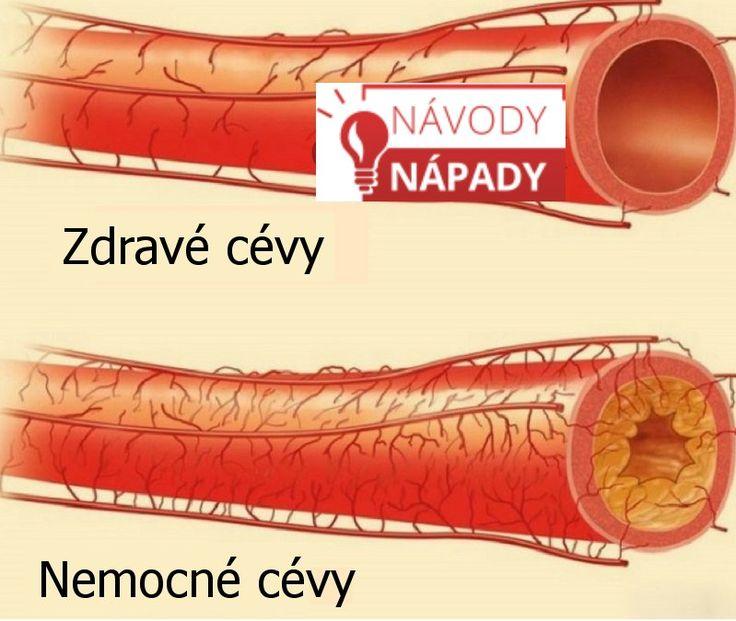 Cévy jsou kanálky, které se stejně jako i jiné orgány v těle po čase opotřebovávají. Ztrácejí pevnost, pružnost a na jejich stěnách se objevují asterosklerotické pláty způsobující bolesti hlavy, infarkt, mozkovou mrtvici nebo vysoký krevní tlak. Tradiční medicína zná mnoho prostředků na proči