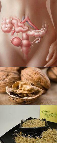 Лечение кисты яичника народными средствами.