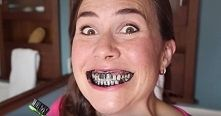 Zobacz zdjęcie Nie chcesz mieć już żółtych zębów? Nie uwierzysz, co pomoże ci je wybielić!