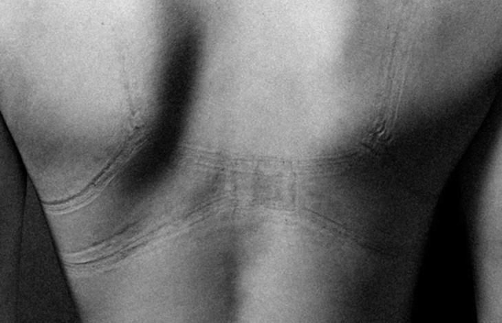 I segni sul corpo delle donne | Linkiesta.it