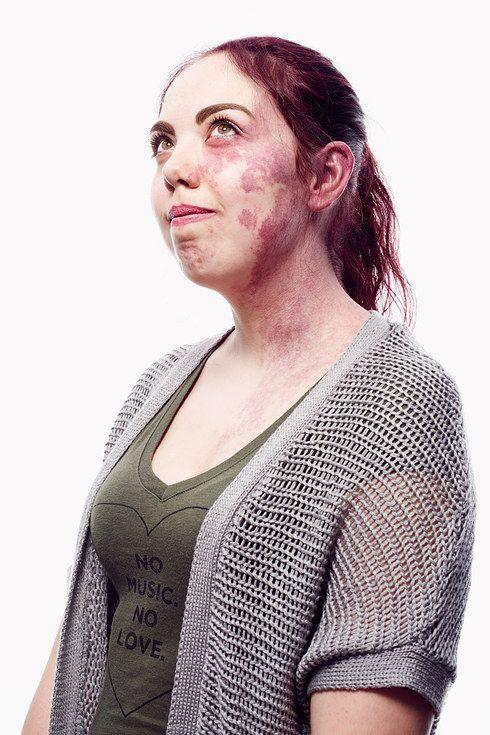 port wine stain birthmark on face