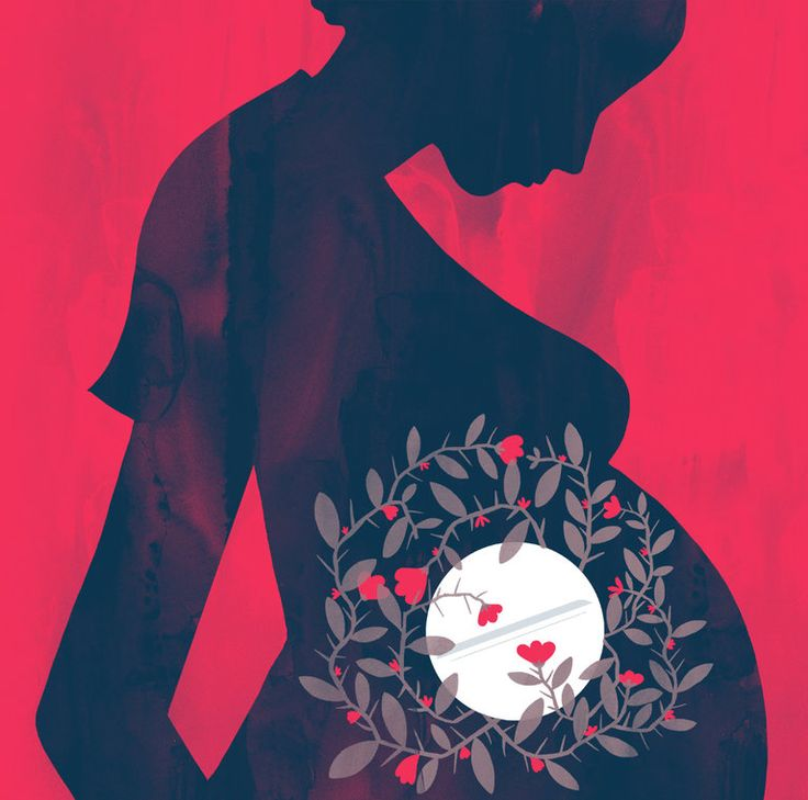 More than 65% of pregnant women in the U.S. use acetaminophen. It might increase the risk that children will develop asthma or ADHD, this Op-Ed explains. (Illustration: Chris Silas Neal)